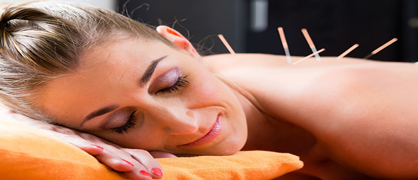 Acupuncture Chicago Pain Relief