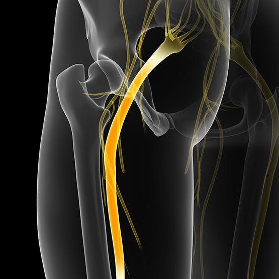 Sciatica Pain Relief | Acupuncture Chicago IL