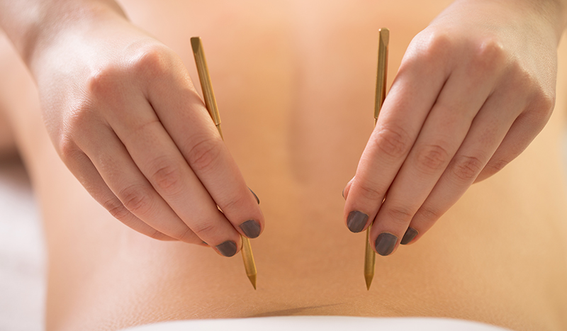 Acupuncture Chicago | Acupressure Treatment